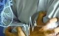 胸痛只想到心肌缺血?这12种常见病因也要掌握!