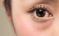 戴美瞳到底有什么风险?为啥眼科专家不建议佩戴?